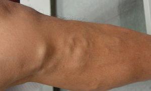 По какой причине вздулись вены на ноге или руке?