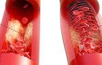 5 причин закупорки вен на ногах, лечение тромбоза медикаментозно и хирургически, профилактика и народные рецепты