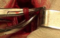 Варикоцеле операцией можно полностью вылечить в 98% случаев