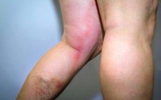 Красные пятна на ногах при варикозе – методики лечения и возможные причины