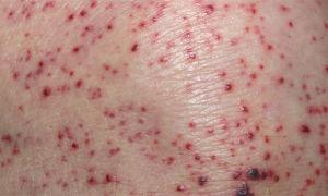 Симптомы, диагностика и последующее лечение аллергического васкулита