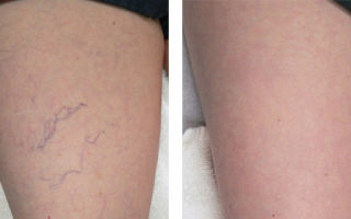 Как убрать вены на ногах без хирургической операции: альтернативное лечение варикоза