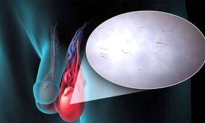 Симптомы и лечение варикоза мошонки без хирургии