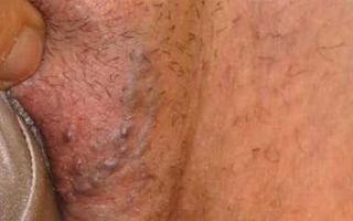 Лечение варикоза половых губ после бимануальной диагностики