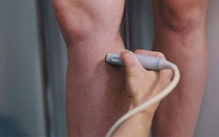 Врач по венам на ноге как называется – к кому в клинике обращаться при варикозе?