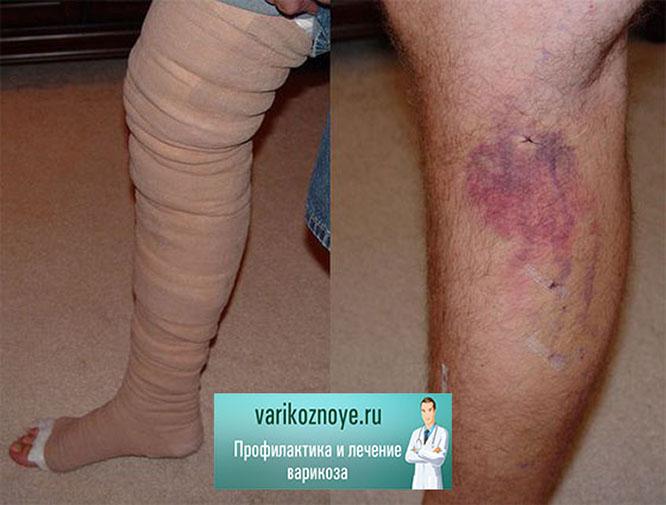 боль в ногах и симптомы варикоза