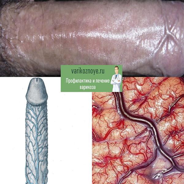 варикоз на пенисе