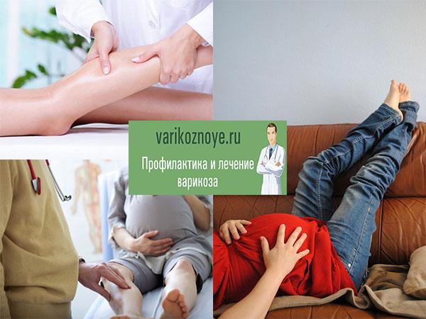 лечение вен во время беременности
