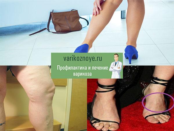 узловатые вены на ногах