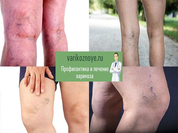 варикозная сетка в области колена