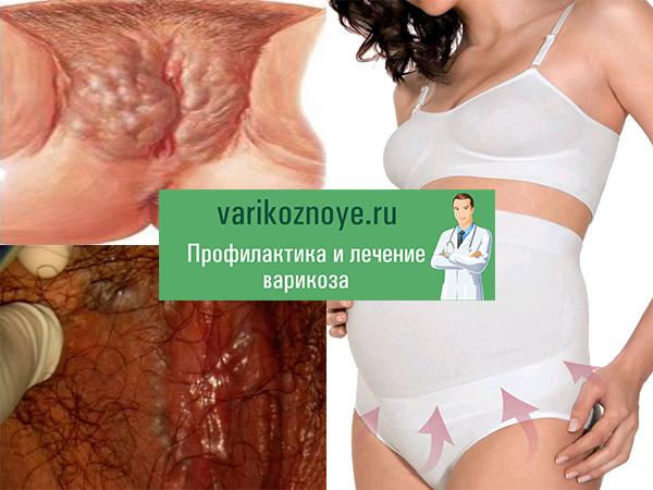 Профилактика варикоза при беременности