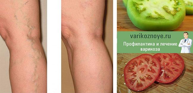 зеленые и спелые помидоры при варикозе