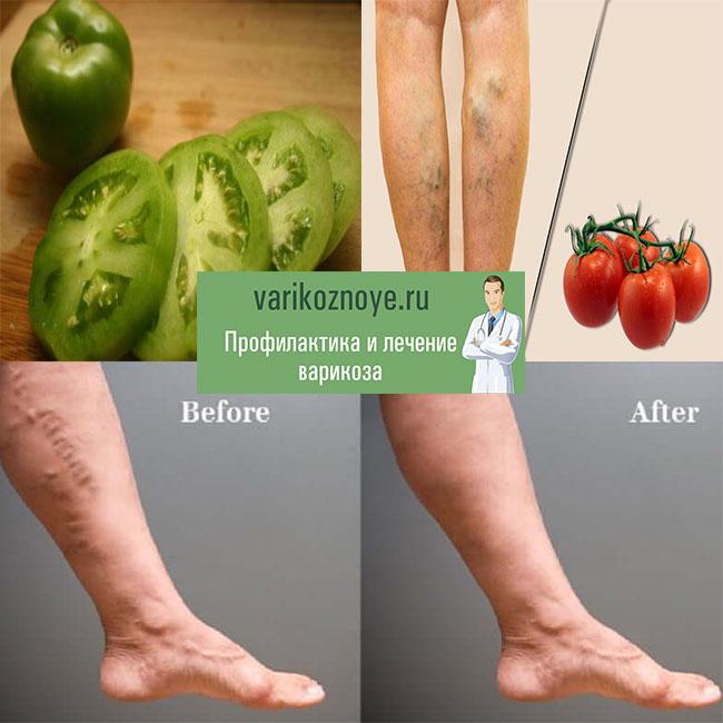 лечение варикоза помидорами - до и после