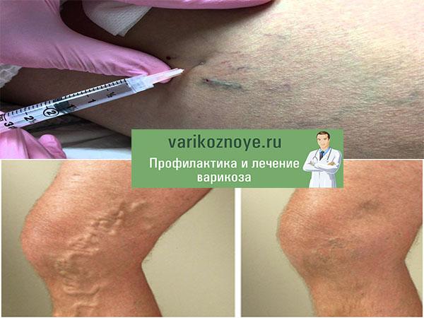 лечение варикоза уколами