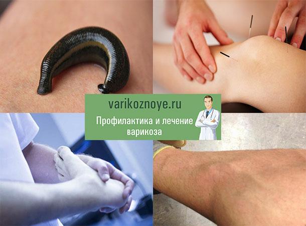нетрадиционные методы лечения тромбофлебита