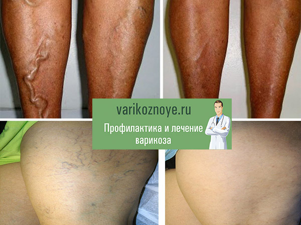 вены на ногах до и после