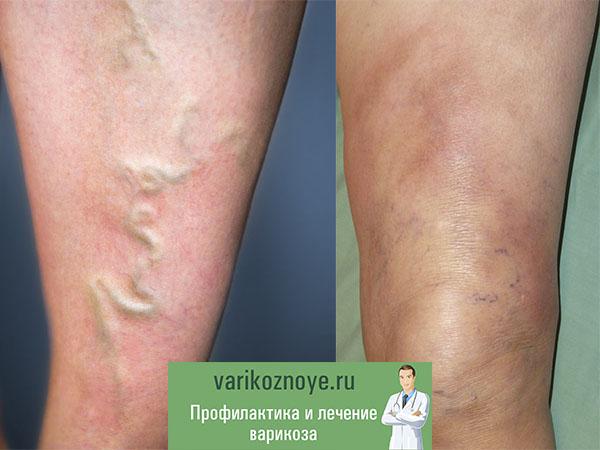 варикозное расширение при тромбофлебите