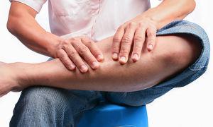 Как лечить хронический тромбофлебит нижних конечностей в домашних условиях?