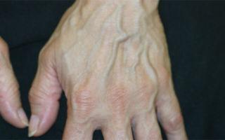 Симптомы варикоза рук и лечение варикозного расширения вен