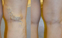 Набухшие вены на ногах выступают – причина и лечение