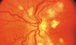 Симптомы варикоза матки и лечение варикозного расширения вен