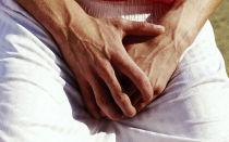 Причины и лечение варикоза в паху у мужчин