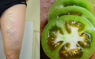 Как проводят лечение варикоза вен на ногах зеленым помидором?
