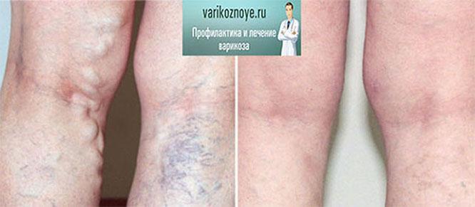 Болит нога ниже колена варикоз